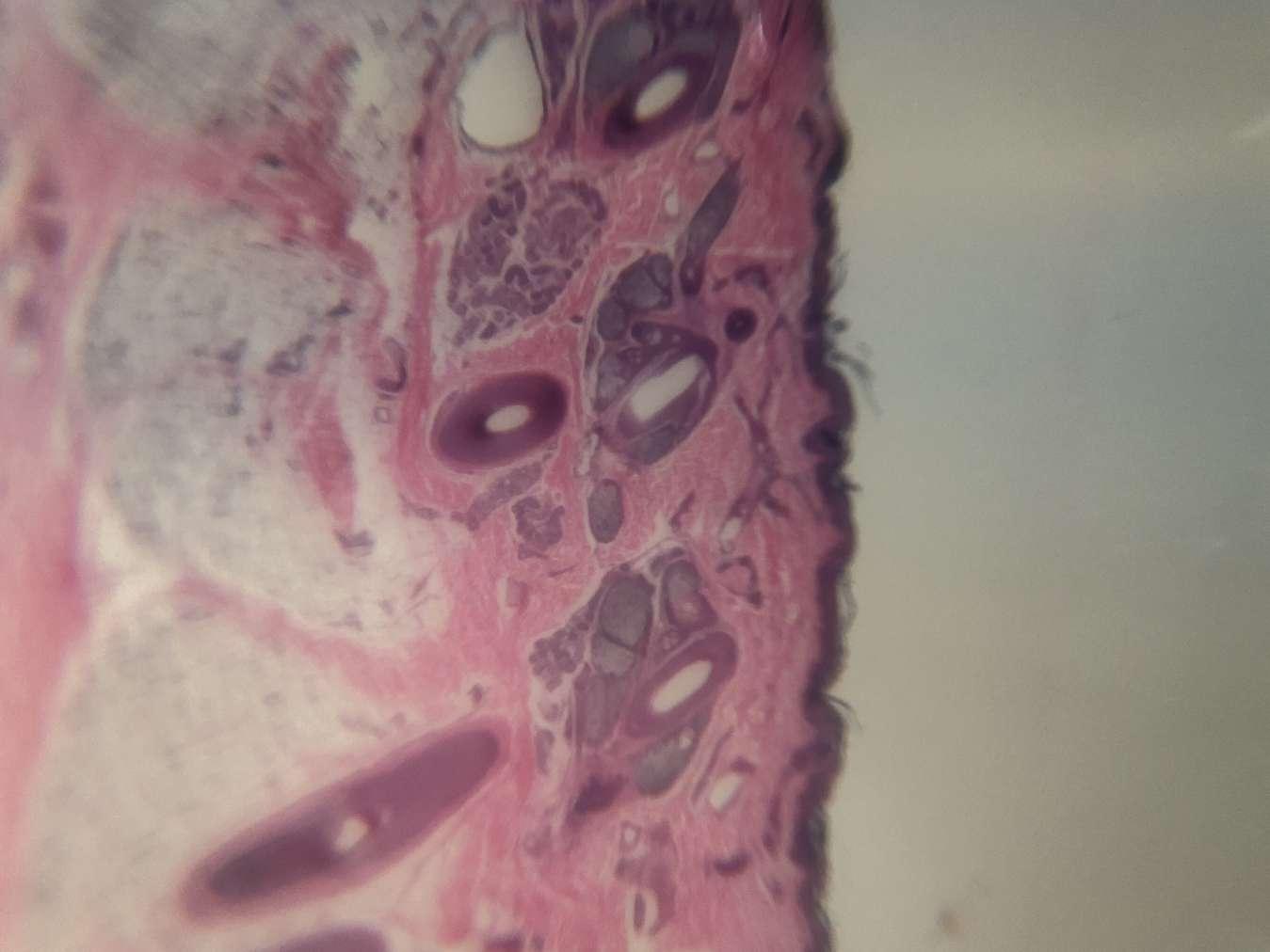 Particolare pezzo di pelle e capelli con lenti Blips micro